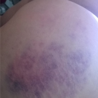 Ana bruised after spanking 2